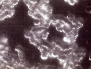 Blutbild eines Mannes mit Kreislaufschwäche und kollabierendem Immunsystem im Ausgangsstadium